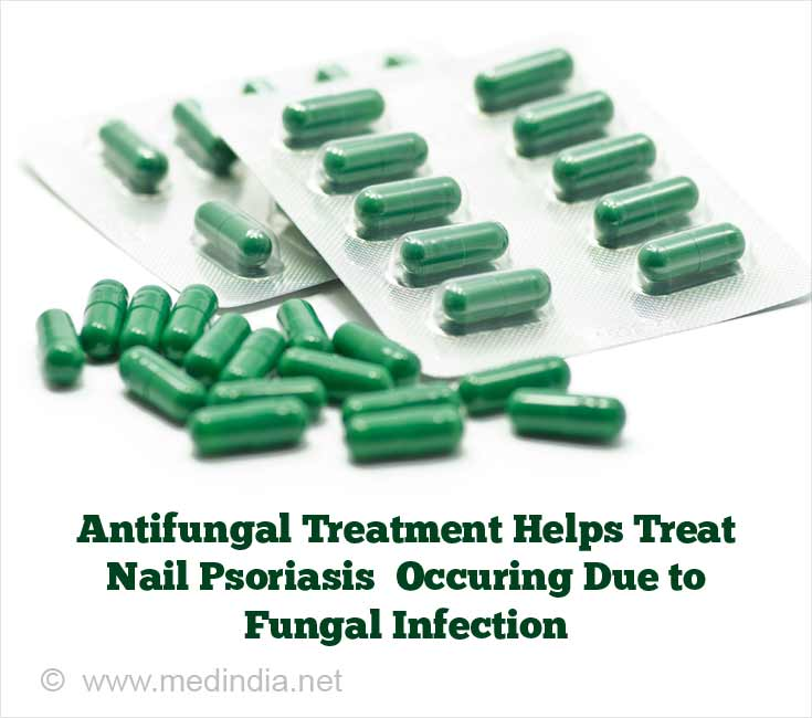 Antifungal Treatment Helps Treat Nail Psoriasis that Occurs Due to Fungal Infection