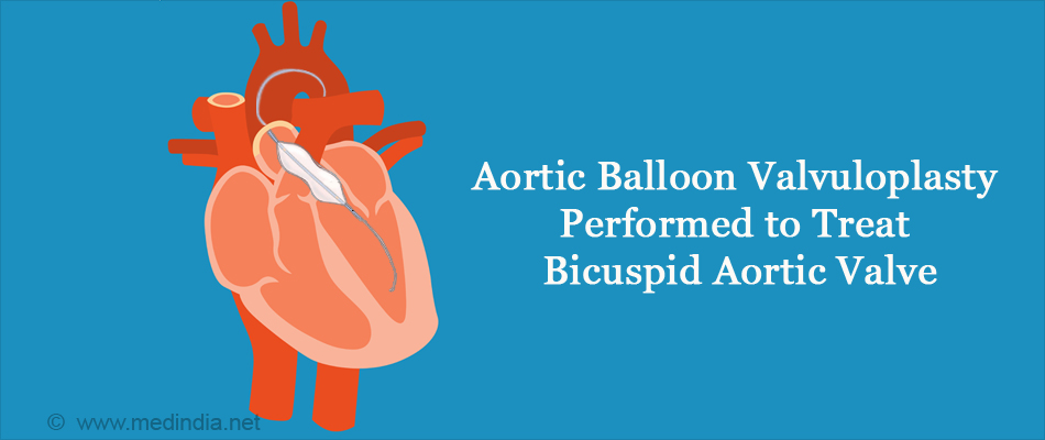 Aortic Balloon Valvuloplasty Performed to Treat Bicuspid Aortic Valve