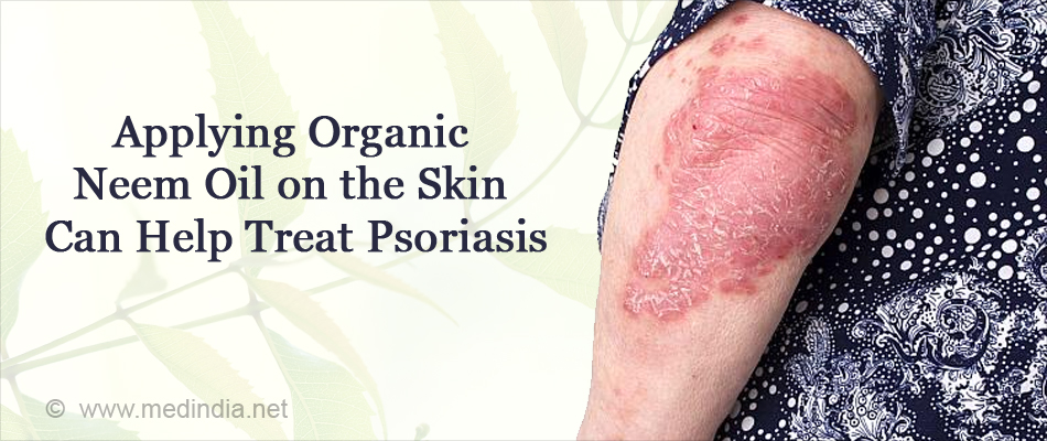 Applying Organic Neem Oil on the Skin Can Help Treat Psoriasis