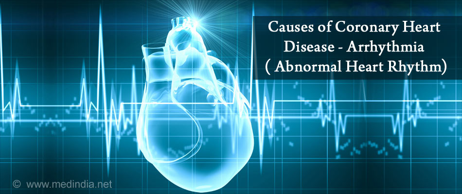 Causes of Coronary Heart Disease - Arrhythmia