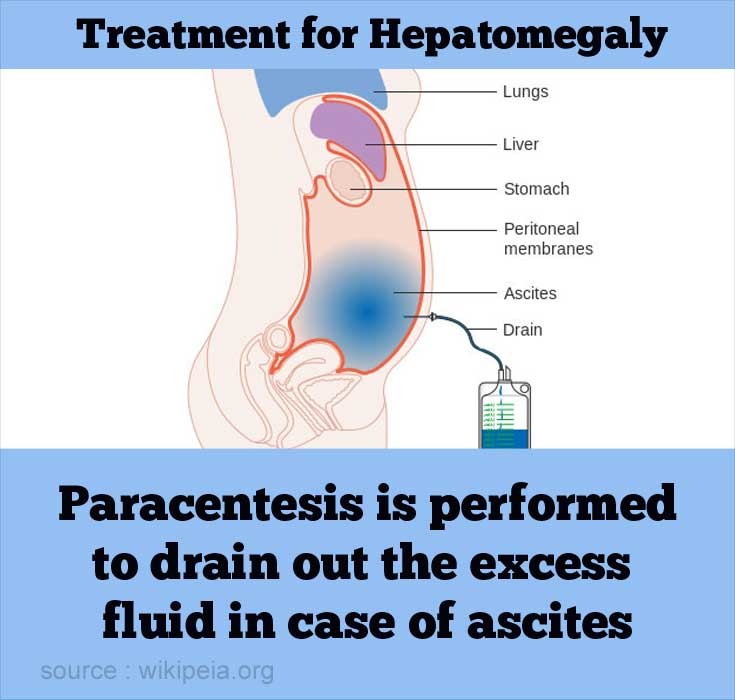 hepatomegaly - causes, symptoms, diagnosis, treatment & prevention, Skeleton