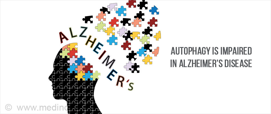 Autophagy and Alzheimer's Disease