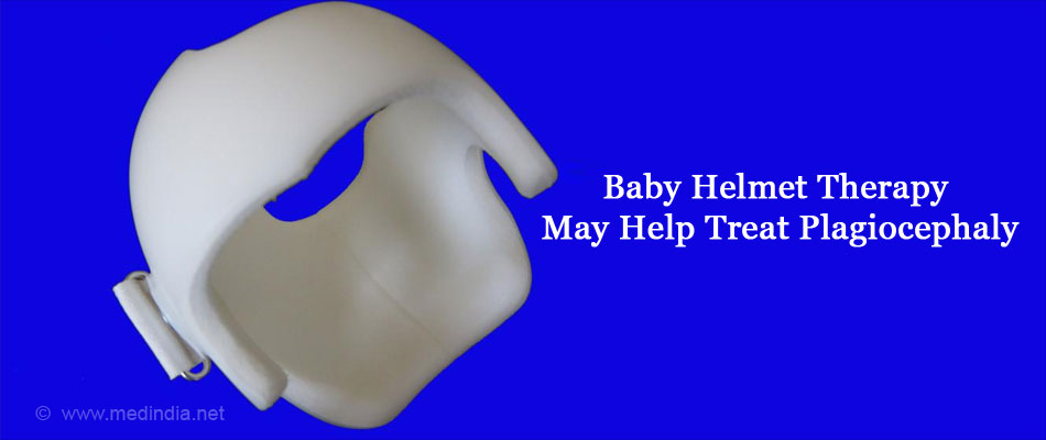 Baby Helmet Therapy May Help Treat Plagiocephaly