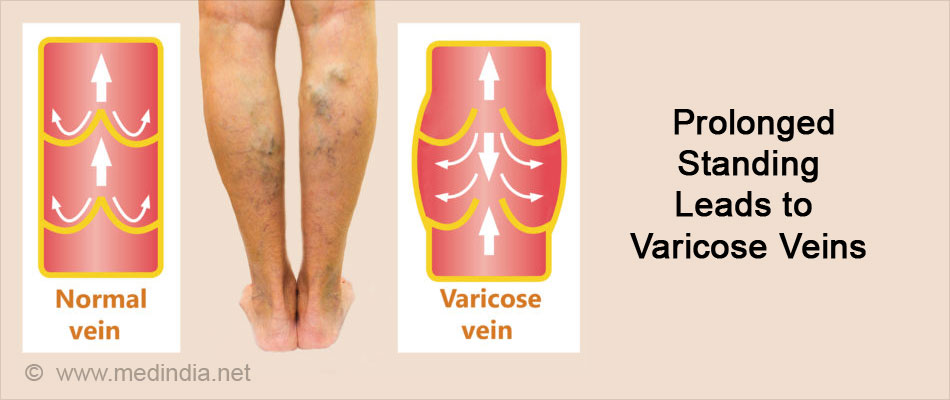 Prolonged Standing Leads to Varicose Veins