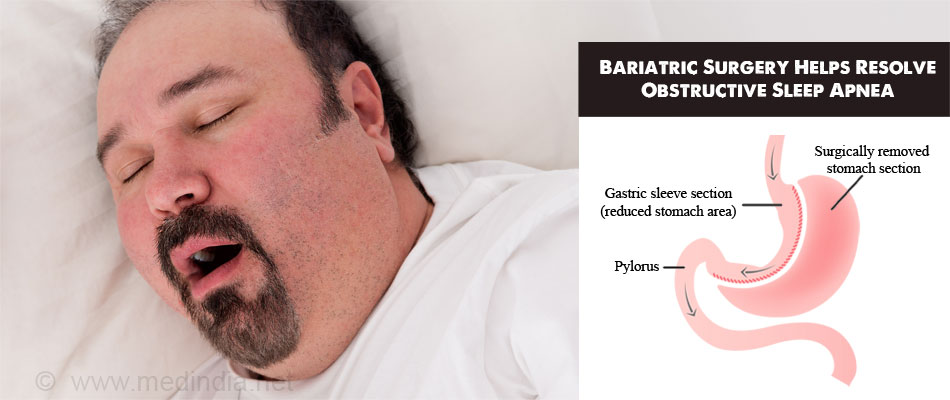 Bariatric Surgery Helps Resolve Obstructive Sleep Apnea