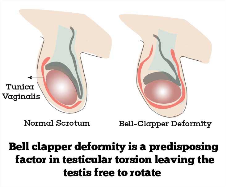 testicular torsion. risk factors of testicular torsion - bell-clapper deformity
