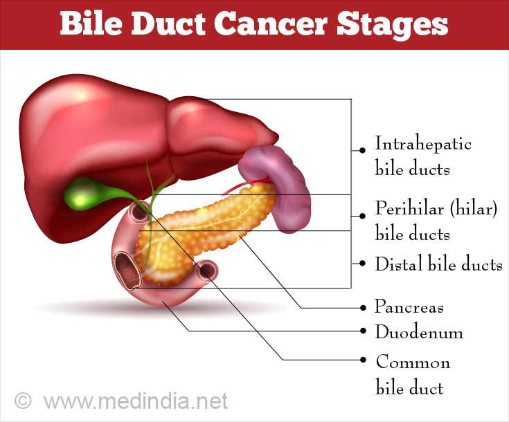 Bile Duct Cancer Stages