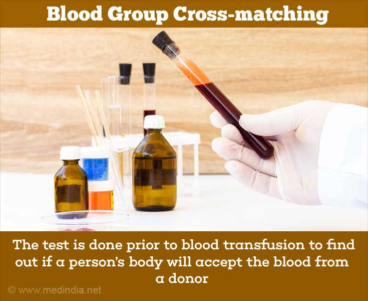 Blood Group Crossmatching