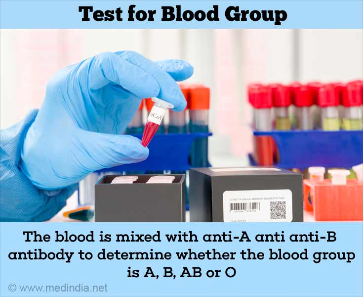 Blood Group Testing