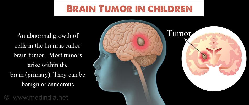 brain tumor in children types causes symptoms