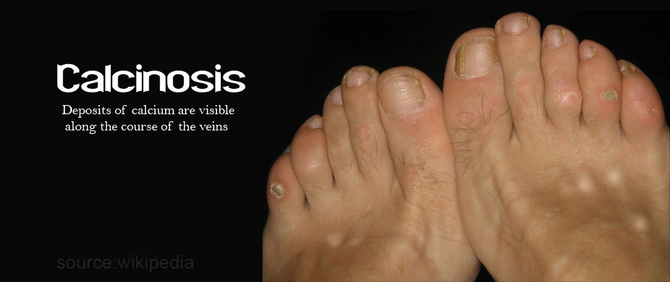 Calcinosis - Abnormal Deposits of Calcium
