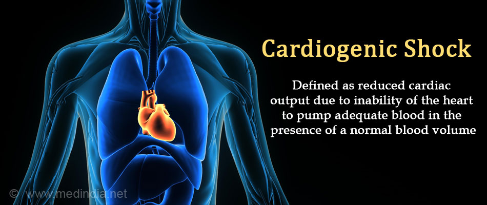 images Heart Attack Diagnosis and Treatment