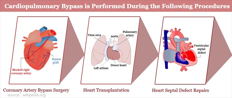 Cardiopulmonary Bypass is Performed During the Following Procedures