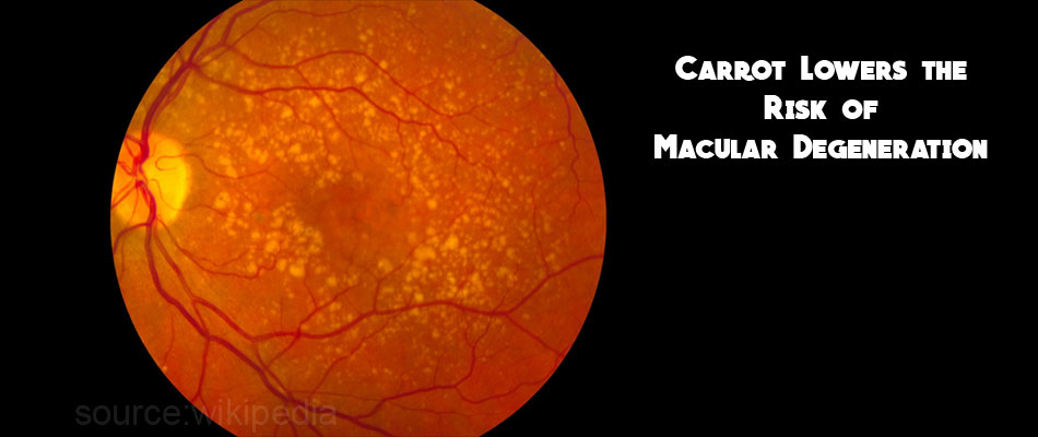 Carrot Lowers the Risk of Macular Degeneration