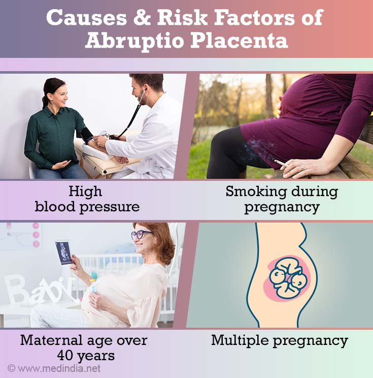 Causes and Risk Factors of Abruptio Placenta