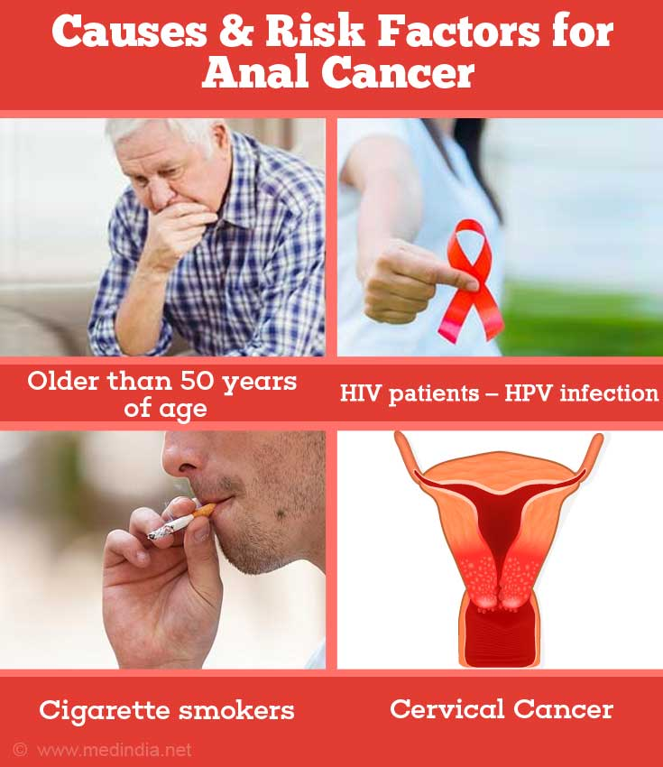 Anal sex and cancer risk