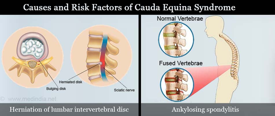 cauda equina syndrome - causes, symptoms, diagnosis & treatment, Human Body