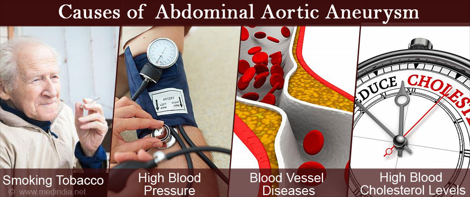 Causes of Abdominal Aortic Aneurysms