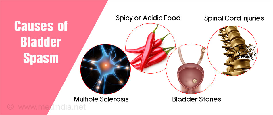 Causes of Bladder Spasm