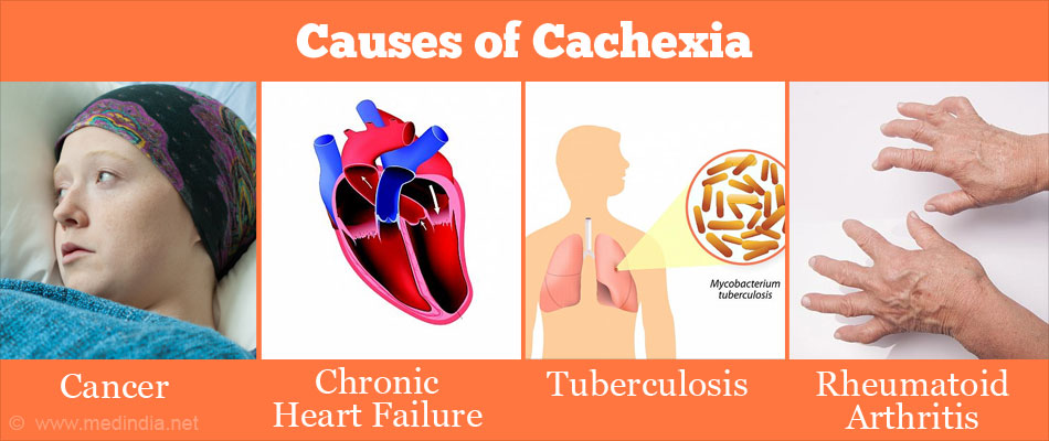 Causes of Cachexia
