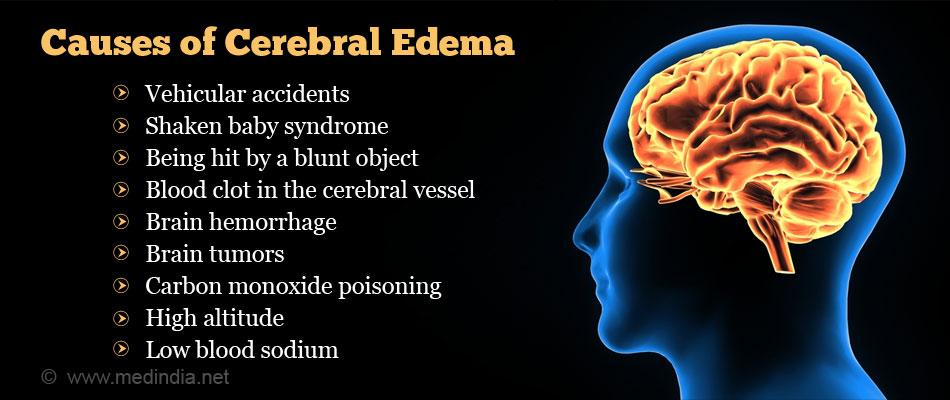 CEREBRAL EDEMA DOWNLOAD