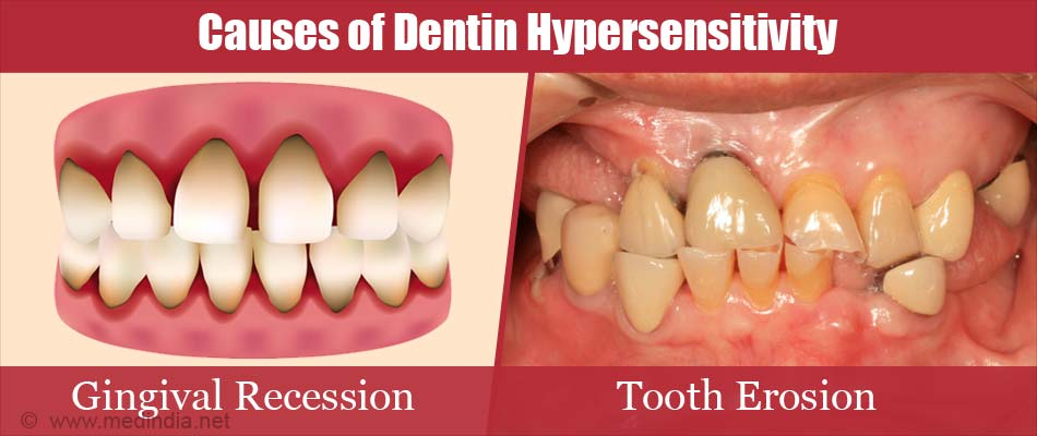 Causes of Dentin Hypersensitivity