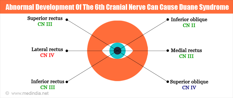 Abnormal Development Of The 6th Cranial Nerve Can Cause Duane syndrome
