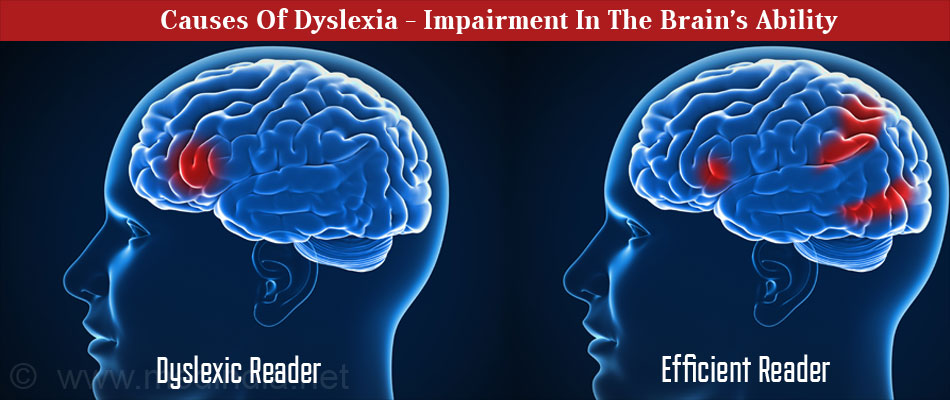 Causes Of Dyslexia - Impairment In The Brain's Ability