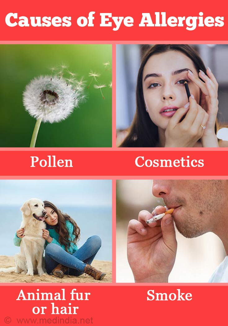 Causes of Eye Allergies