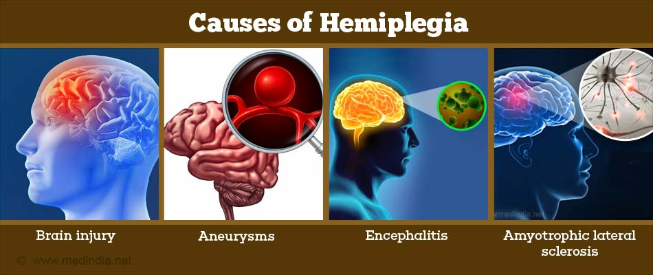 what are the causes of hemiplegia