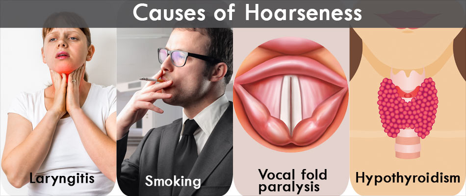 Causes of Hoarseness