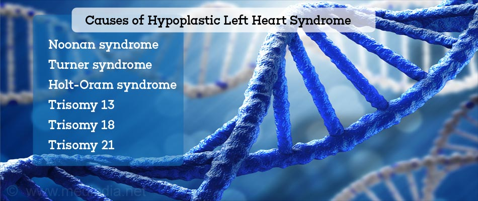 Causes of Hypoplastic Left Heart Syndrome