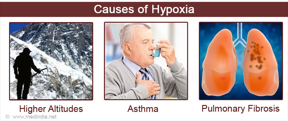 Causes of Hypoxia