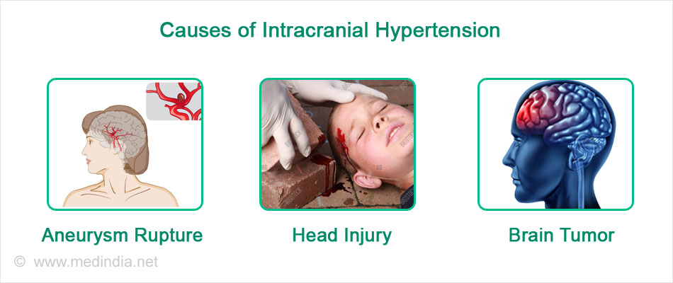 Causes of Intracranial Hypertension