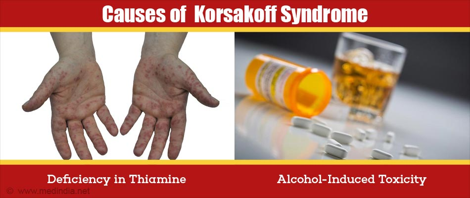 Causes of  Korsakoff Syndrome