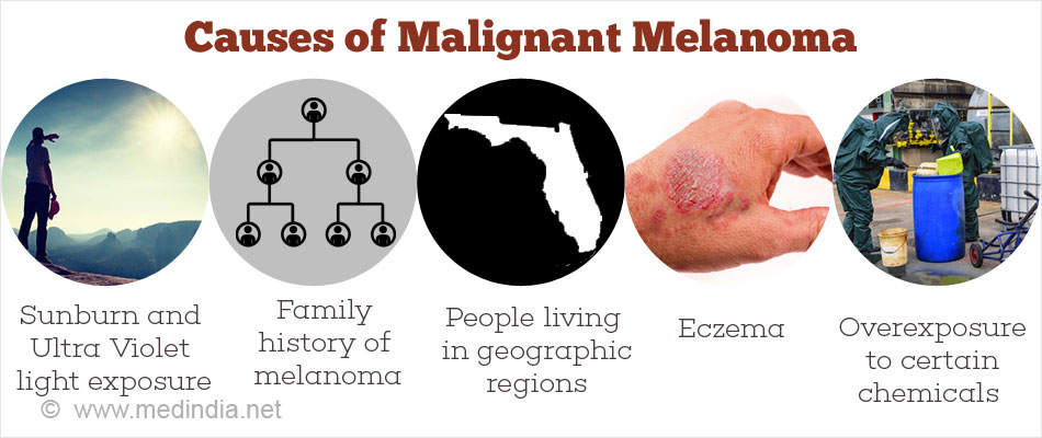 Causes of Malignant Melanoma