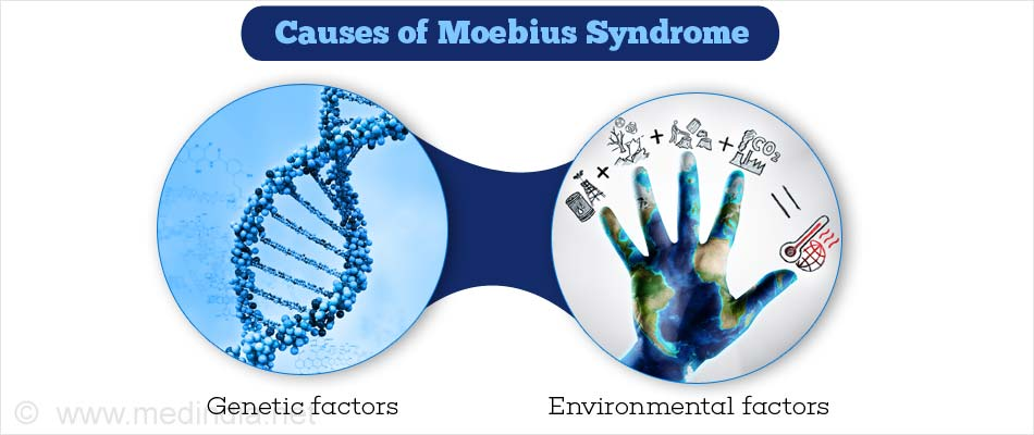 Causes of Moebius Syndrome