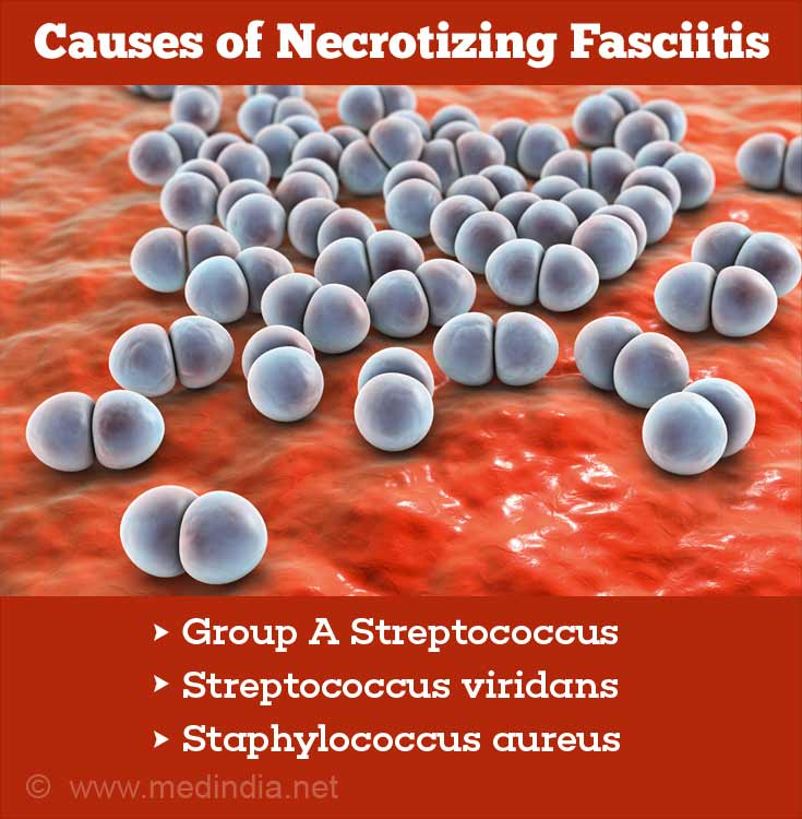 Causes of Necrotizing Fasciitis