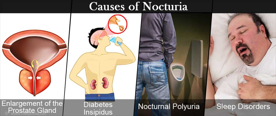 Nocturnal polyuria and diabetes