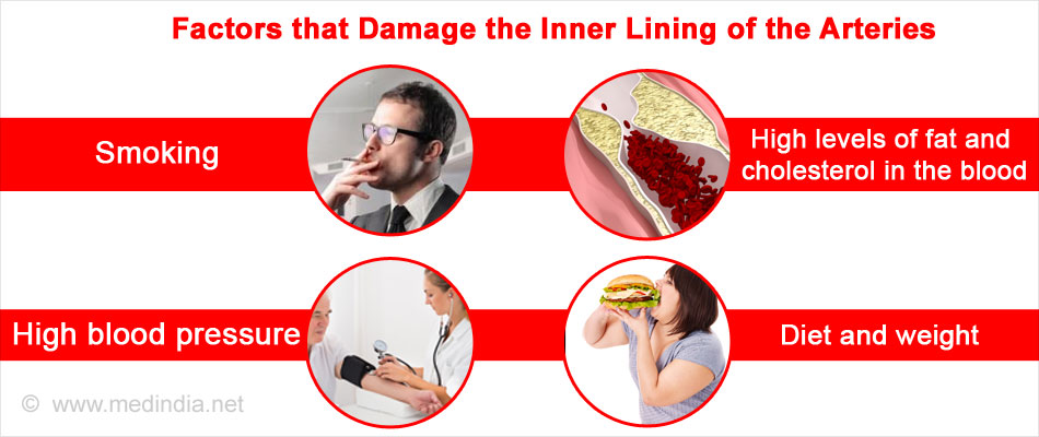 Factors that Damage the Inner Lining of the Arteries