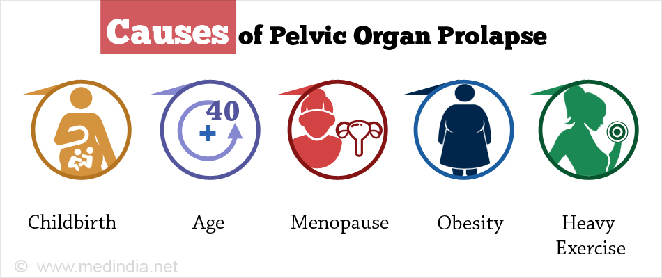 Causes of Pelvic Organ Prolapse