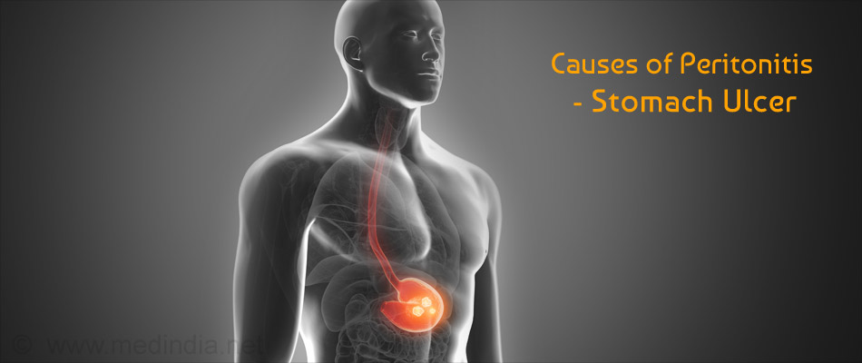 Causes of Peritonitis - Stomach Ulcer