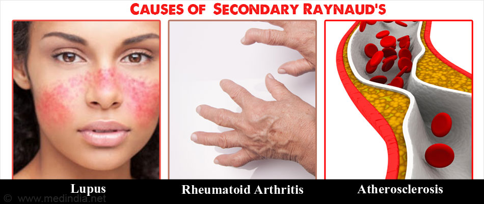 Raynauds causes symptoms diagnosis treatment amp prevention