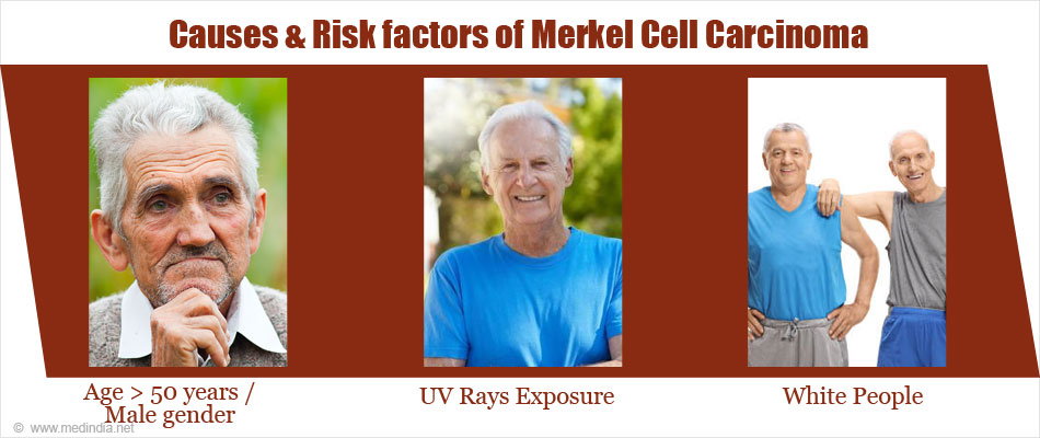 Causes & Risk Factors of Merkel Cell Carcinoma