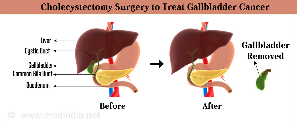 Cholecystectomy Surgery to Treat Gallbladder Cancer