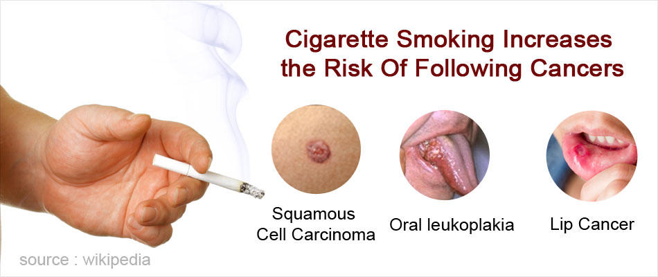 Cigarette Smoking Highly Increases the Risk of Following Cancers