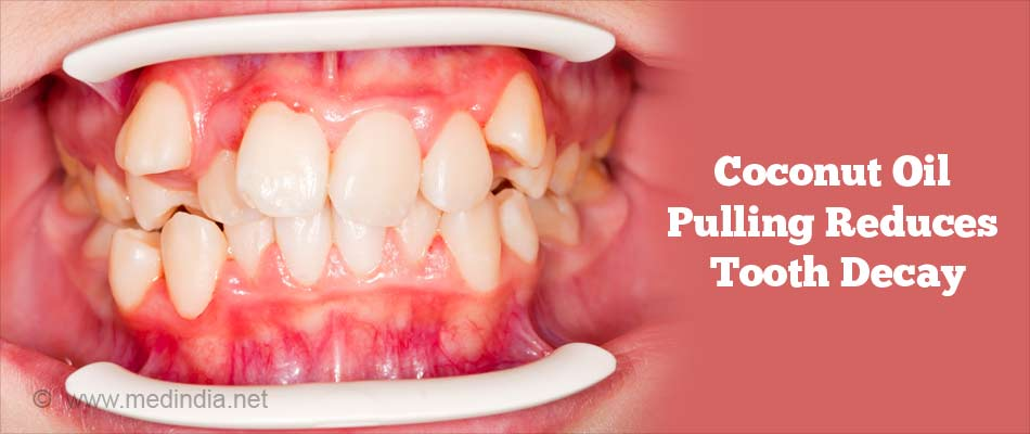 Coconut Oil Pulling Reduces Tooth Decay