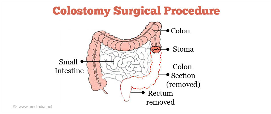 Colostomy Surgical Procedure