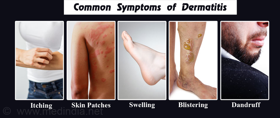 Common Symptoms of Dermatitis