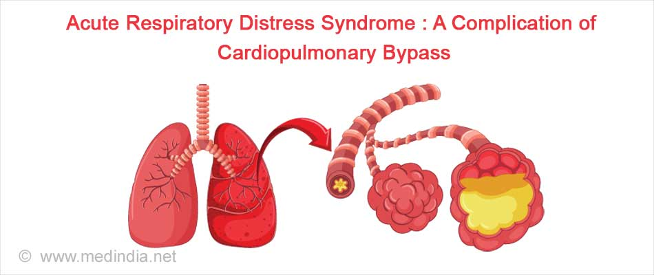 Acute Respiratory Distress Syndrome : A Complication of Cardiopulmonary Bypass